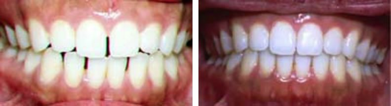 Invisalign braces before and after: Amy
