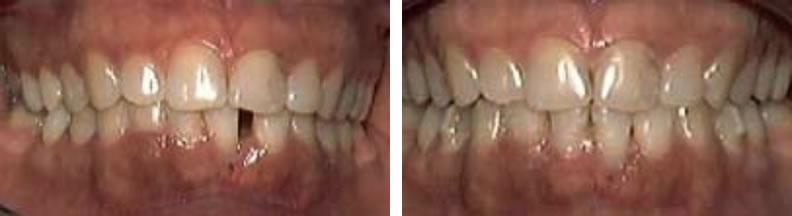 Invisilign braces before and after: Chris