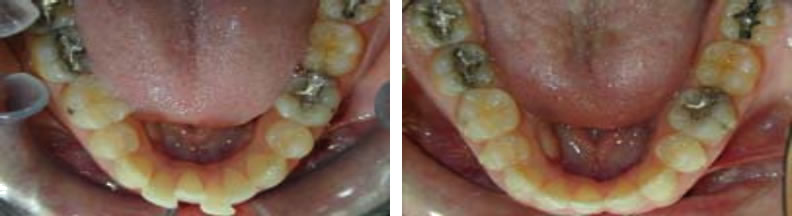 Invisalign braces before and after: Mike