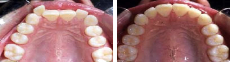 Invisilign braces before and after: Jennifer